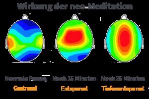 Die neo-Meditation