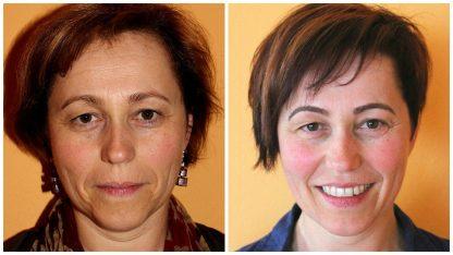 Chi statt Botox